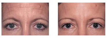 Before and after recommended use of Baby Quasar.