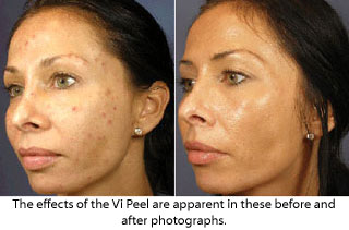 Before and seven days after the Vi Peel.