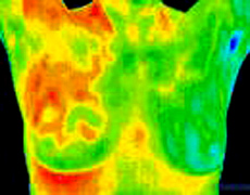 Thermal Breast Imaging