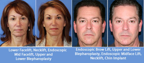 facelift-jay-calvert-md-beverly-hills