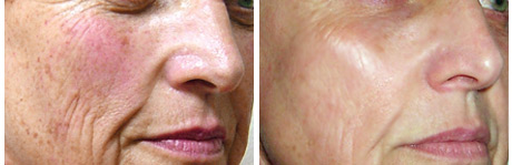 RoxSpa Non Surgical Face Lift - Before and After