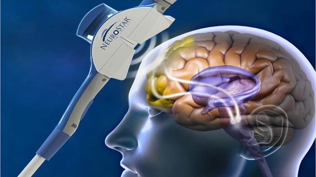 Transcranial Magnetic Stimulation (TMS) to treat depression