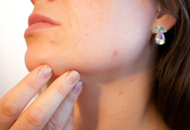 4 Ways to Deal With Stubborn Acne