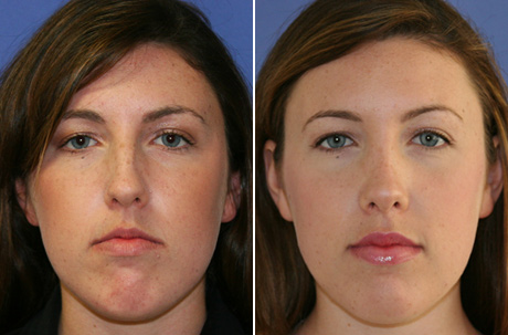 The Best Rhinoplasty Surgeon In Beverly Hills Can Make You Look Your Best Ever La S The Place Los Angeles Magazine