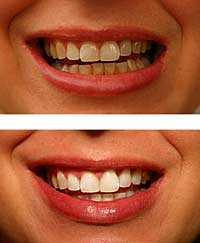 Dr. Forouzanpour teeth whitening